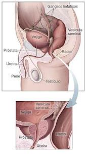 Manejo masajes prostático buena dilatación-2719
