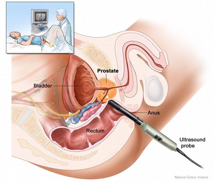 Manejo masajes prostático buena dilatación-1404